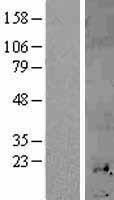 NBL1-13346 - Metallothionein-1H Lysate