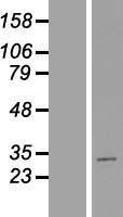 NBL1-13389 - Metaxin-2 Lysate