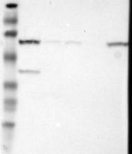 NBP1-89576 - METTL3
