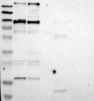 NBP1-89937 - Microcephalin-1
