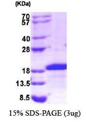 NBP1-30185 - Midkine