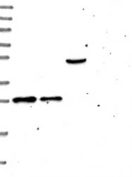 NBP1-92121 - MTIF3