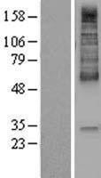 NBL1-16013 - Monocarboxylic acid transporter 1 Lysate