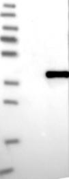 NBP1-89646 - Monoglyceride lipase