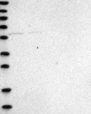 NBP1-92152 - Mucolipin-1