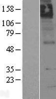 NBL1-09177 - Muscarinic Acetylcholine Receptor M5 Lysate