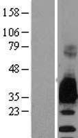 NBL1-13213 - Myelin Protein Zero Lysate
