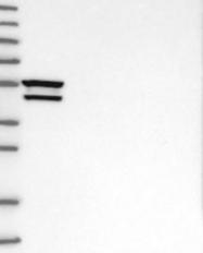 NBP1-89769 - Myocilin