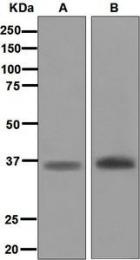 NBP1-95760 - Myogenin