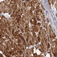 NBP1-87496 - Myomesin-2