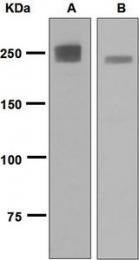 NBP1-95213 - Myosin-2 / MYH2