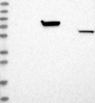 NBP1-87851 - Myotilin