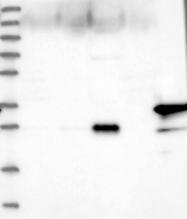 NBP1-85439 - Myozenin-1