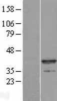 NBL1-13446 - Myozenin 1 Lysate