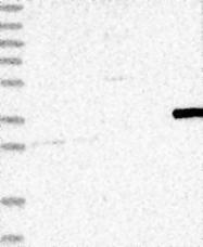 NBP1-88259 - Myozenin-2