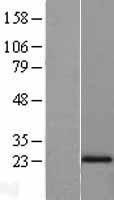 NBL1-13489 - N acetyl transferase 5 Lysate