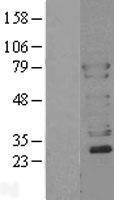 NBL1-17778 - N-WASP Lysate