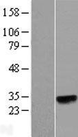 NBL1-13451 - N6AMT2 Lysate
