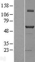 NBL1-13452 - NAB1 Lysate
