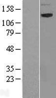 NBL1-13461 - NAG Lysate