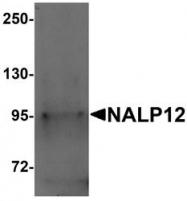 NBP1-76293 - NALP12