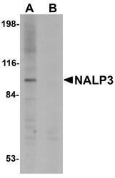 NBP1-77080 - NALP3
