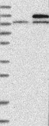NBP1-90206 - NALP3
