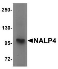 NBP1-76288 - NALP4