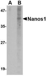 NBP1-77327 - NANOS1