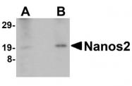 NBP1-76370 - NANOS2