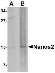 NBP1-76917 - NANOS2