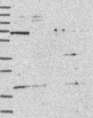 NBP1-84053 - NAP1L5