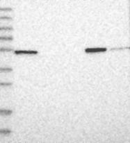 NBP1-87244 - NAPRT1