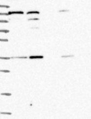 NBP1-92167 - NARG1L
