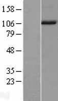 NBL1-13481 - NARG1L Lysate