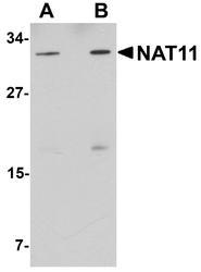 NBP1-77095 - NAT11
