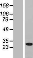 NBL1-13486 - NAT11 Lysate