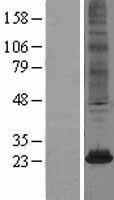 NBL1-13491 - NAT8 Lysate