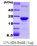 NBC1-19062 - Glyoxalase I / GLO1