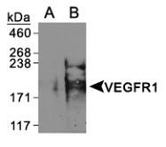 NBL1-06699 - VEGF Receptor 1 Lysate