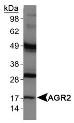 NBP1-05936 - AGR2