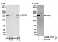 NBP1-05958 - SOS2