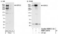 NBP1-05970 - HERC2