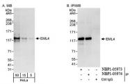 NBP1-05973 - EMAP4 / EML4