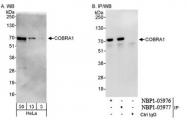 NBP1-05977 - NELF-B