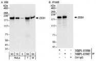 NBP1-05987 - ZEB1
