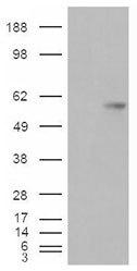 NBP1-06096 - VTCN1 / B7H4