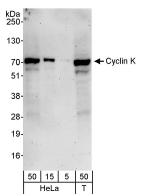 NBP1-06506 - CENPE