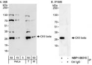 NBP1-06515 - Casein kinase II beta