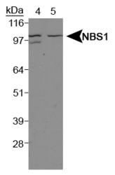 NBP1-06609 - Nibrin